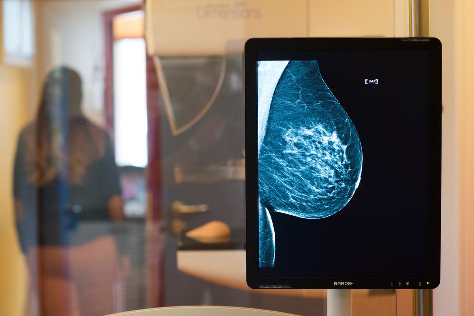 Die Brust einer Frau wird im Rahmen einer Mammografie geröntgt. Mit diesem Verfahren kann Brustkrebs (frühzeitig) erkannt werden.