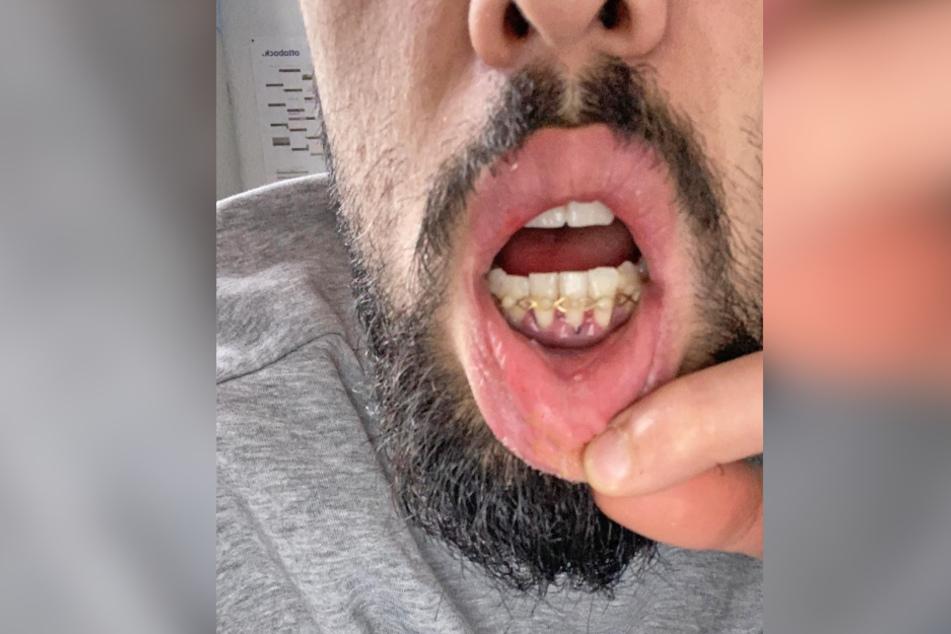 Stomatologie-Selfie: Isa Dogan zeigt seine gerichteten und mit Drähten fixierten Zähne.