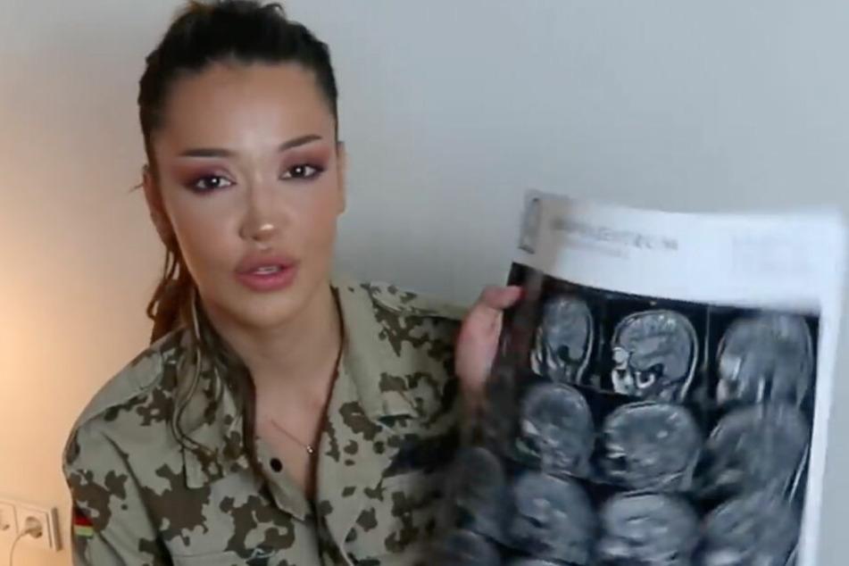 Enisa hält MRT-Aufnahmen ihres Gehirns in die Kamera.