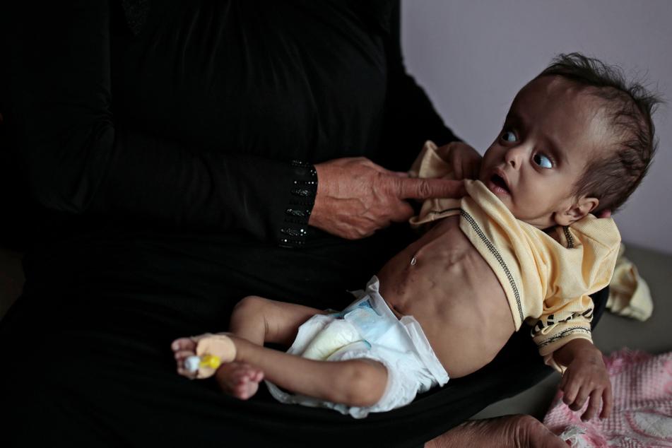 """Millionen von Toten: UN-Chef warnt vor """"schlimmster Hungersnot seit Jahrzehnten"""""""