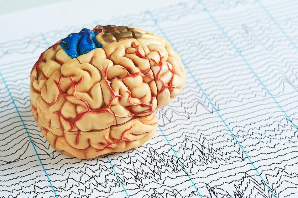 Teile des Gehirns werden von der Amöbe einfach gefressen, bis der Mensch stirbt (Symbolbild).