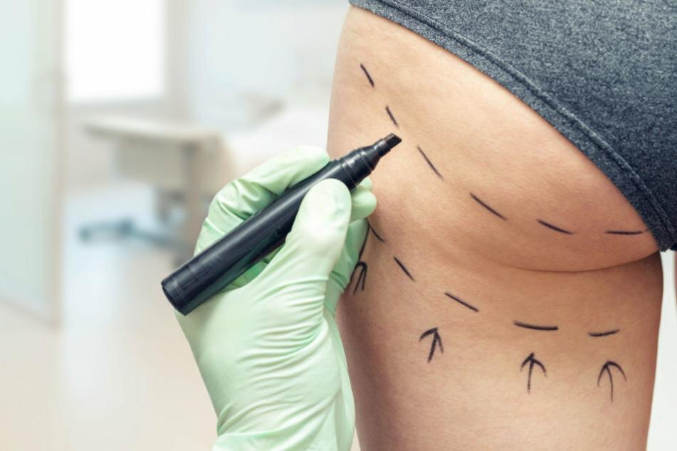 Frau lässt sich Hintern-Implantate machen, während ihr Freund an einem Tumor leidet