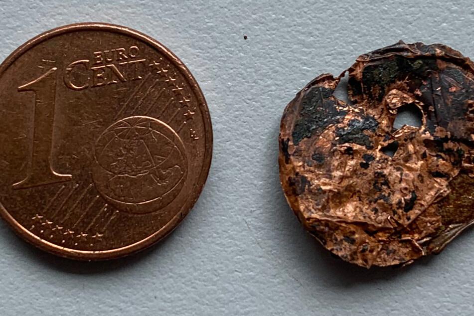 Die rechte Münze steckte monatelang in der Lunge des Patienten.