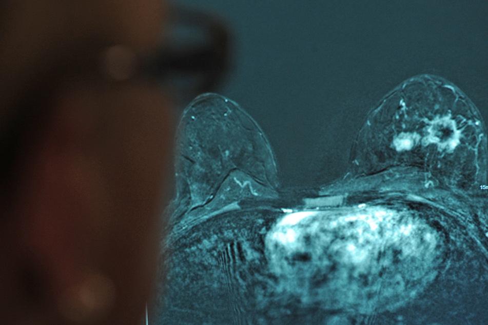 Hier beobachtet eine Ärztin an einem Monitor ein Brustkrebs-Karzinom.