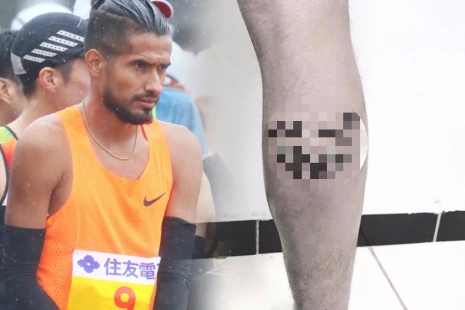 Olympia-Athlet zu euphorisch, nun hat er ein Problem
