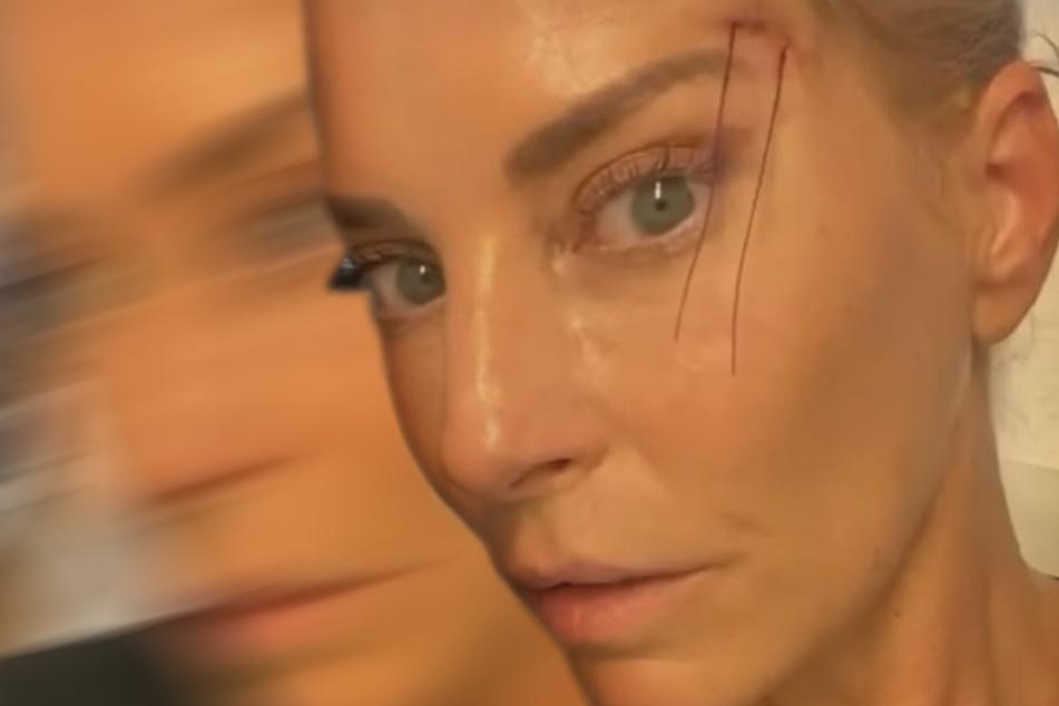 """Giulia Siegel zeigt sich bei Schlupflid-OP: """"Wie beim Socken-Stopfen!"""""""