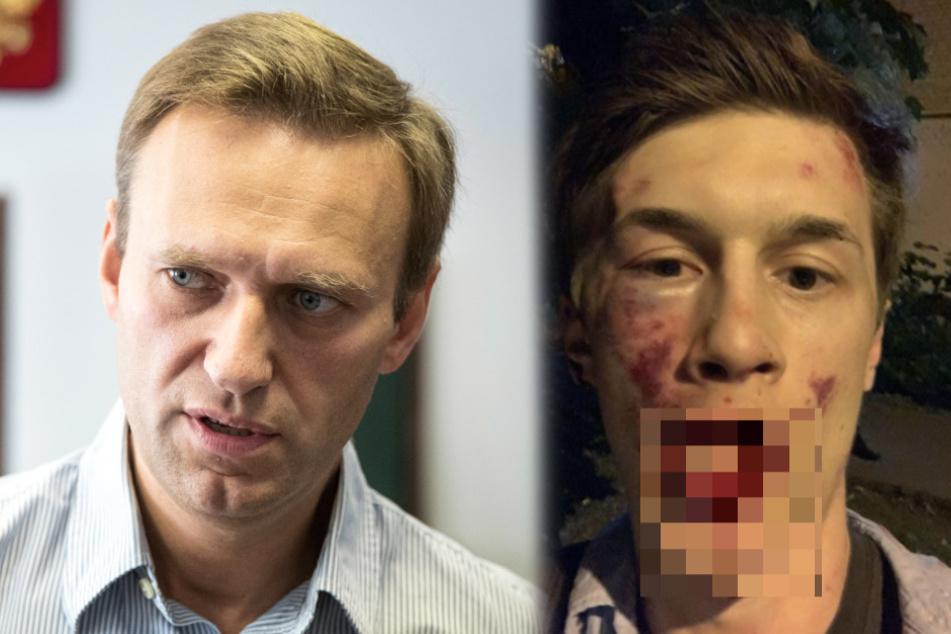 Nächster Angriff auf Kremlkritiker: Schwer verletzter Journalist interviewte Nawalny