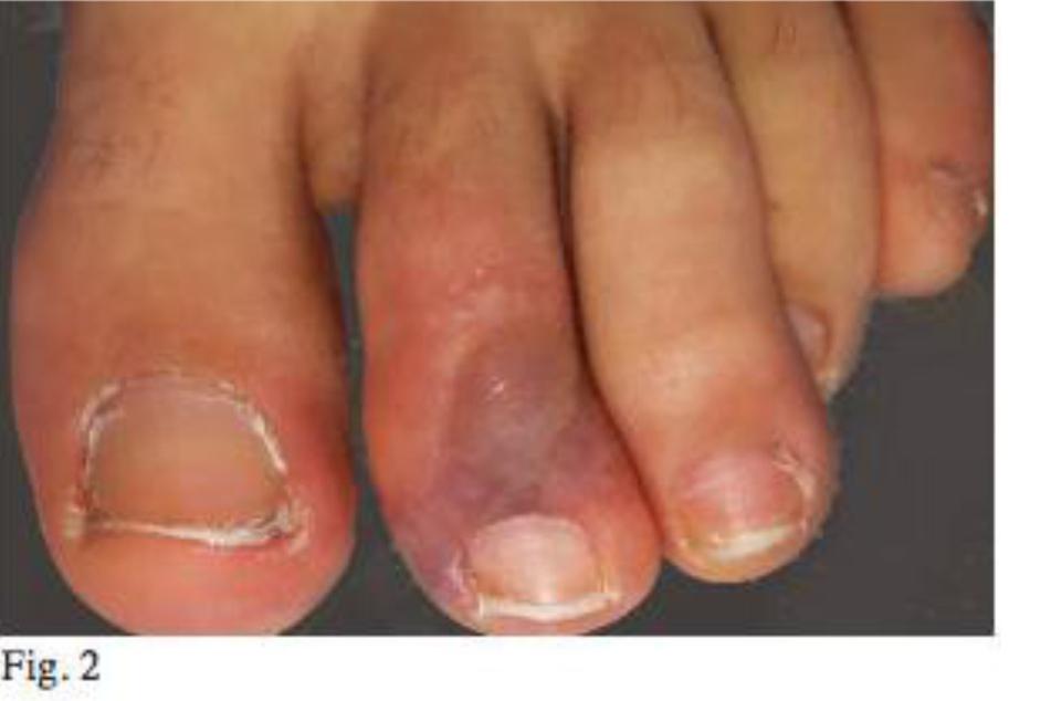 Möglicherweise neues Corona-Symptom an den Füßen - TAG24